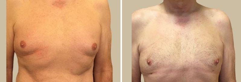 gynekomastie zmenseni prsou muzi