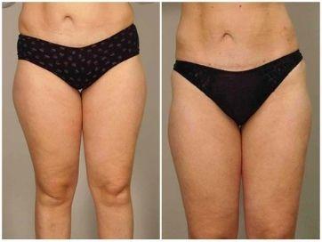 liposukce odsátí tuku