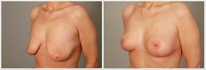 modelace prsou mammaplastika