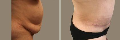 plastika břicha abdominoplastika