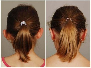 plastika uší otoplastika