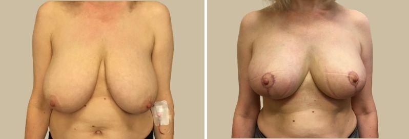 zmenšení redukce prsou