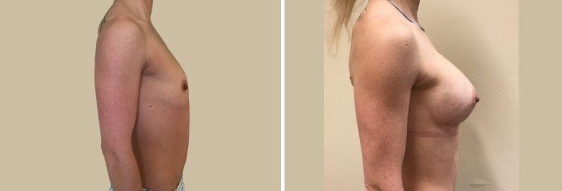 zvesteni prsou augmentace