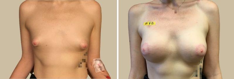 zvesteni prsou augmentace tuberozni prsa