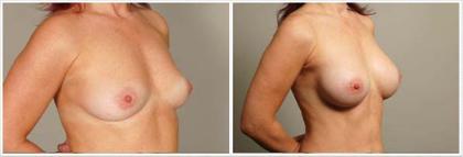 zvětšení prsou augmentace