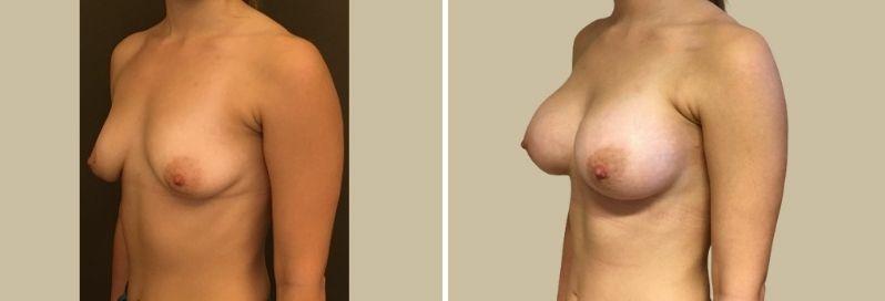 zvetseni prsou augmentace